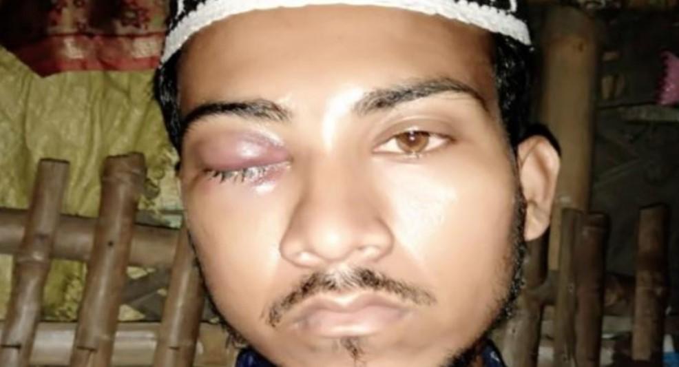 One arrested after Madrasa teacher thrown off train in Kolkata for not chanting 'Jai Shri Ram'